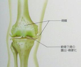 変形性膝関節症の状態像
