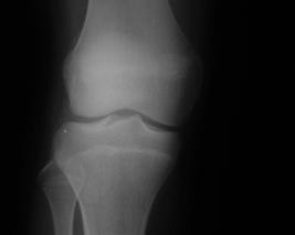 正常膝Xp