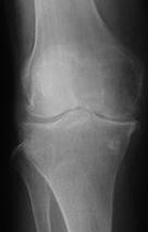 変形性膝関節症Xp