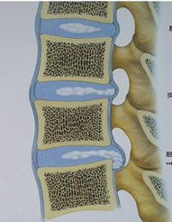 腰椎の椎間板ヘルニア画像