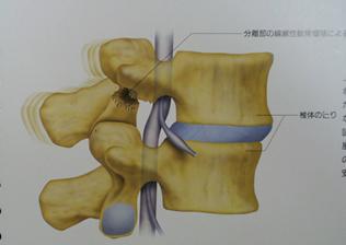 腰椎分離症側面像